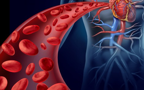 EDS Patients Have Increased Blood Artery Stiffness, Linked to Cardiovascular Disease Risk
