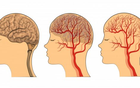 Atypical Headaches Can Be Initial Symptom of Vascular EDS, Case Report Suggests
