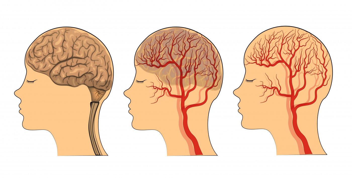 atypical headaches