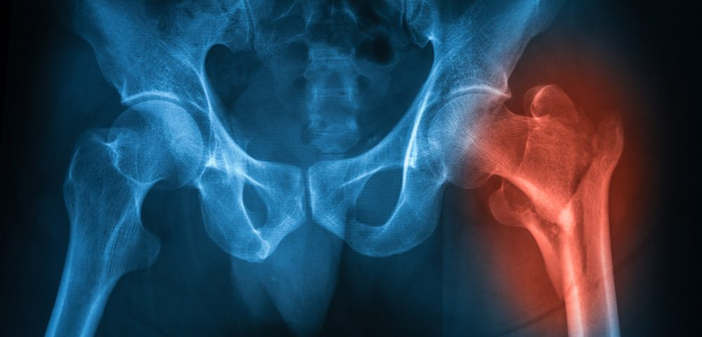 Regenerative Therapy Has Potential to Treat Chronic Joint Dislocation
